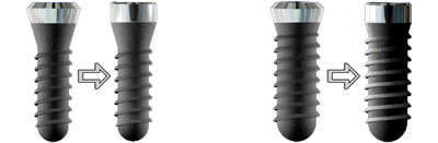 new narrower implants