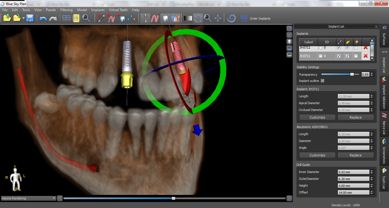 Guided Implants Treatment Planning Software Blue Sky Plan