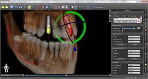 Screenshot from Blue Sky Plan Guided Surgery Software