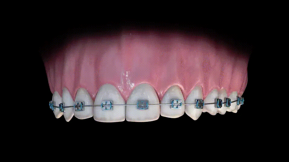 Blue Sky Bio Dental Implant Systems